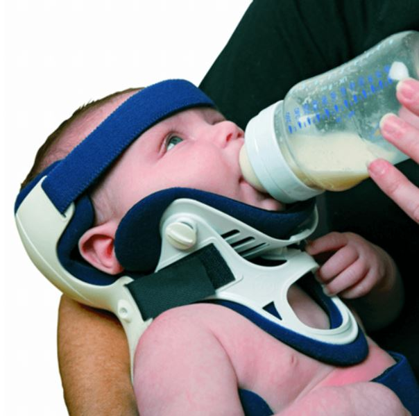 Ossur - Papoose Infant Immobilizer without P0 Front